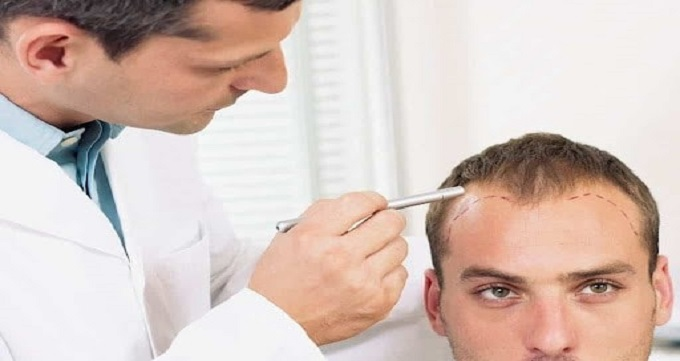 کاشت موی طبیعی